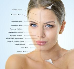 Botox Gesicht